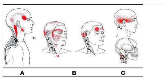 Dolori del collo nella parte superiore